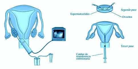La transferencia embrionaria